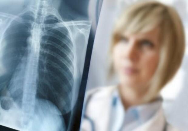 Без права на ошибку: врача-рентгенолога хотят наказать за смерть пациентки - Днепр Vgorode.ua